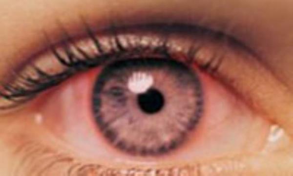 کونژیکتیویت (التهاب ملتحمه چشم) در بچه ها